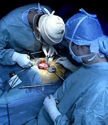 Kidney Transplant Services in Delhi, गुर्दा