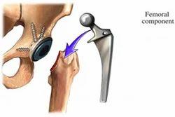 Hip Surgery Replacement Treatment Services