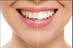 Teeth Cleanup Services