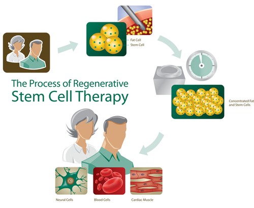 Stem Cell Therapy in Ahmedabad, Himalaya Mall by Assure Poly