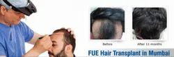 FUE Hair Transplant Treatment Service