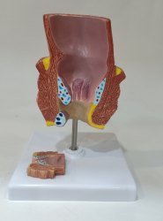 Rectum Disease Model