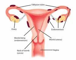 Hysterectomy Surgery