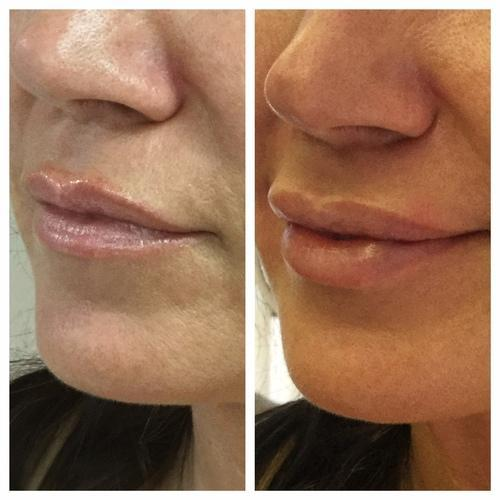 What Is Juvederm Ultra 4