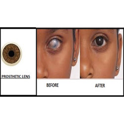Prosthetic Contact Lens