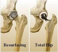 Hip Treatments - Hip Preservation Service Provider from Chennai