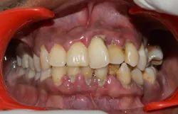 Oral Prophylaxis And Gum Surgery Service