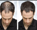 Hair Problems Treatment Service