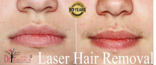 Diod Laser Hair Removal Treatment In Kharadi Pune Id 16193687848
