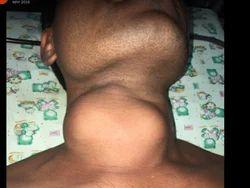 Cervical Cancer Treatment Service