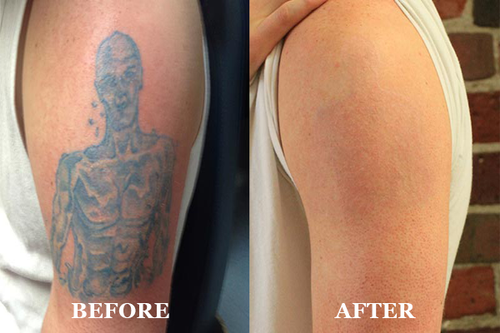 best tattoo removal