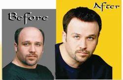 Men & Women Hair Weaving & Hair Bonding