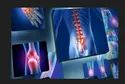 Peld Spine Surgery Service