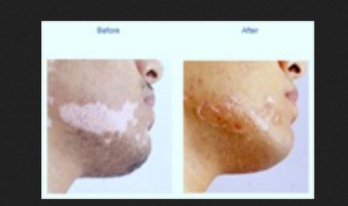 Vitiligo And White Spots Treatment Services And Laser Hair Removal Treatment Services Nursing Homes Clinics Hospitals Aditya Skin Clinic And Laser Centre Vadodara