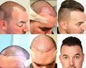 Hair Transplantation FUE Process