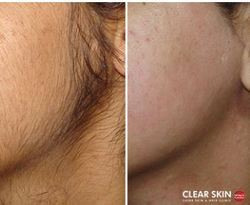 The Seven Miles Brazilian Laser Hair Removal Before And After