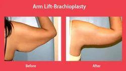 Arm Lift-Brachioplasty