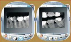 Digital X-Rays Service