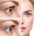 Under Eye Lifting Laser Treatment
