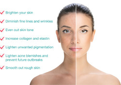 Chemical Peeling Services
