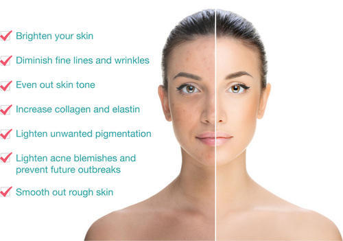 chemical peeling services in jaipur banipark by azure skin and hair