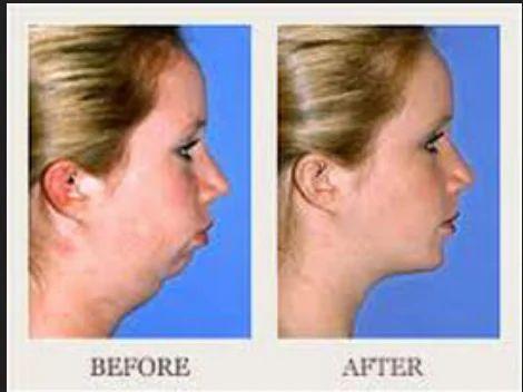 Orthognathic Surgery, मेडिकल सर्जरी सेवाएं in