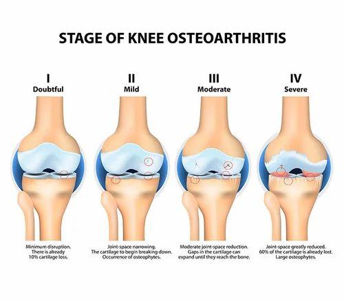 Knee Arthritis in Tirunelveli, Tirunelveli