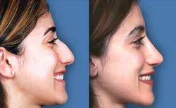 Rhinoplasty Nose Reshaping