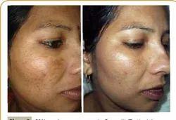 Skin Whitening Gluthatione Cream