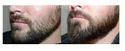 Beard Transplant Service