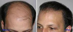 Hair Transplantation Surgery.