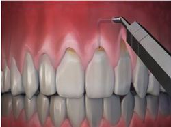 Gum Treatment And Surgery