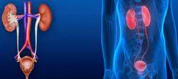 Urology Treatment Service