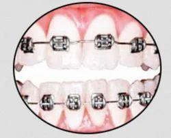 Teeth Alignment  Service