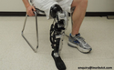 Prosthetic Foot