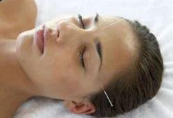 Facial Palsy Treatment
