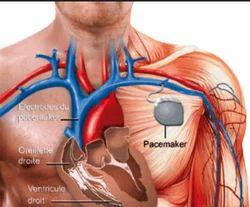Pacemaker Implantation Treatment Services