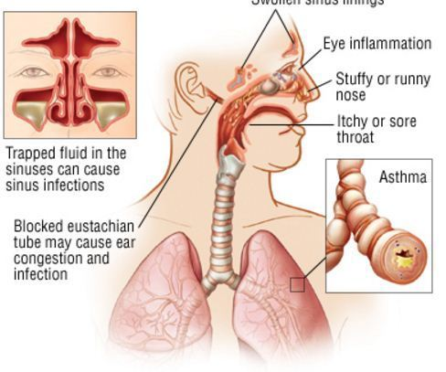 how to clear post nasal drip from your throat