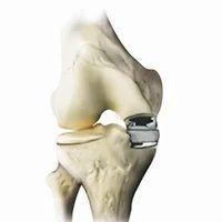 Knee Unicompartmental Resurfacing