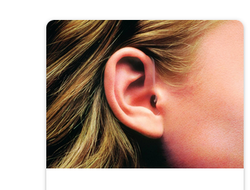 Impacted Earwax Treatment