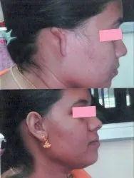 Silicon Ear Prosthesis