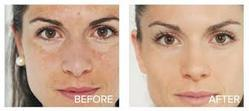 Party Peel for Skin Rejuvenation