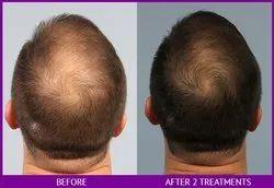 Advance PRP Hair Loss
