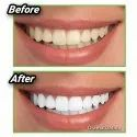 Teeth Whitener 20g Charcoal Tooth Whitening Powder