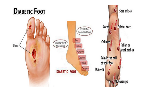 Diabetic Foot Care Treatment Service in Ahmedabad, Ahmedabad