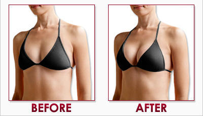 images breast cc