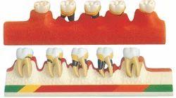 Periodontal Disease Model