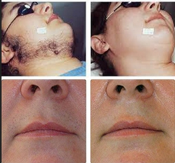 Laser Hair Removal Services In Delhi ल जर ह यर