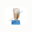 Lower Incisor With Two Roots Model