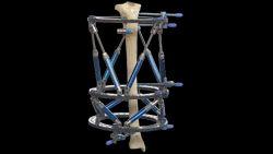 Tibia Lengthening External Fixator